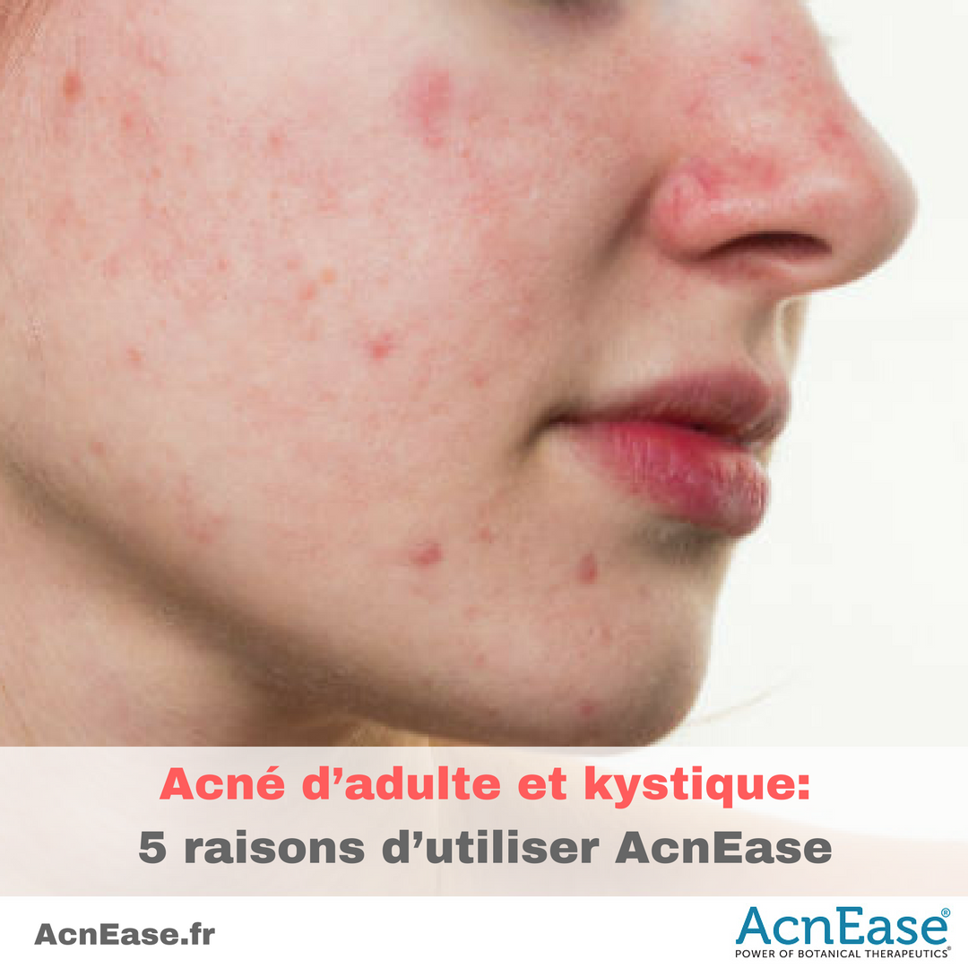 acne a common skin disease on adolescents Acne removal acne is a common skin disorder that affects approximately 650million people every year the nhs (national health service) ranks acne vulgaris as the 8th most common disease.