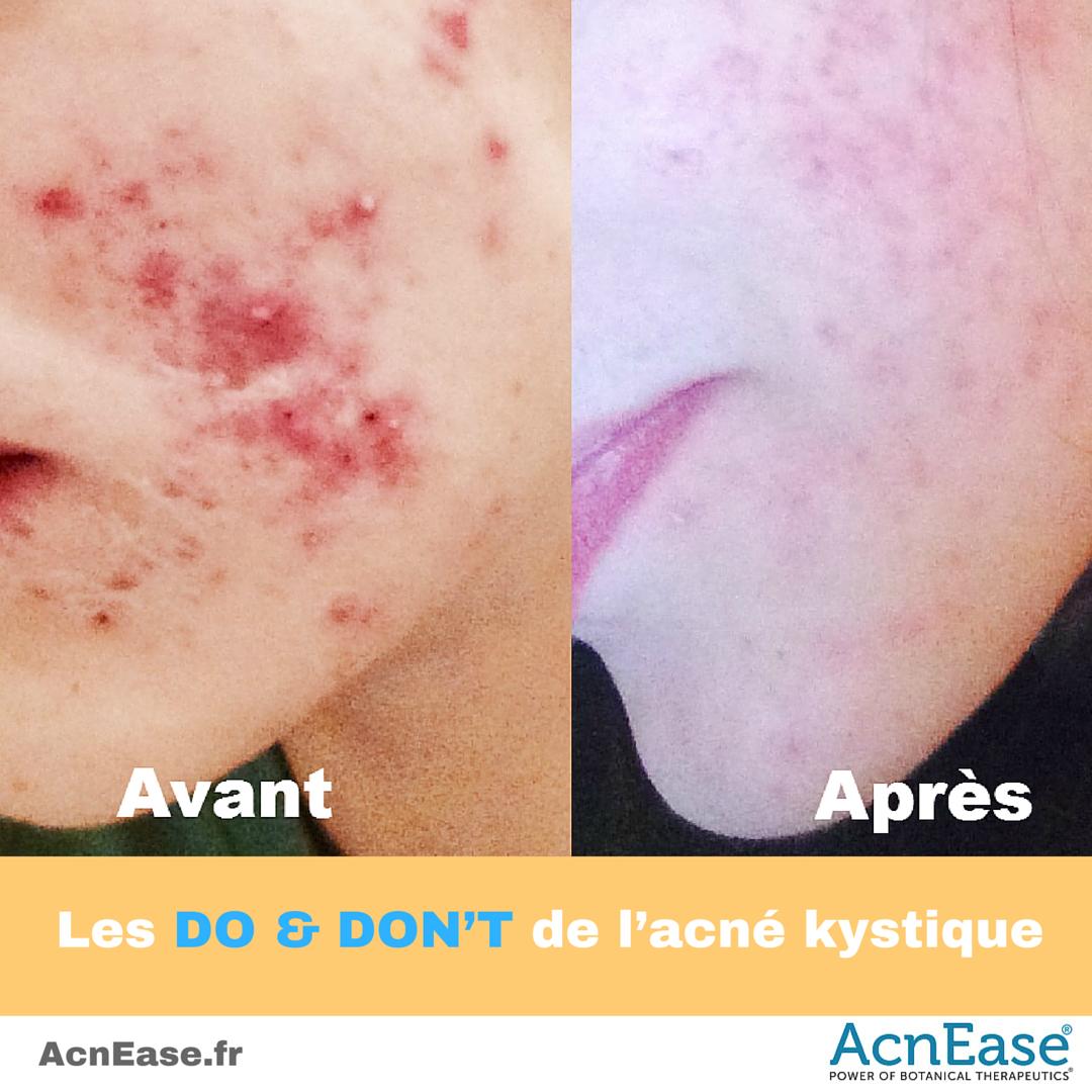 traitement acné chez femme adulte occasion