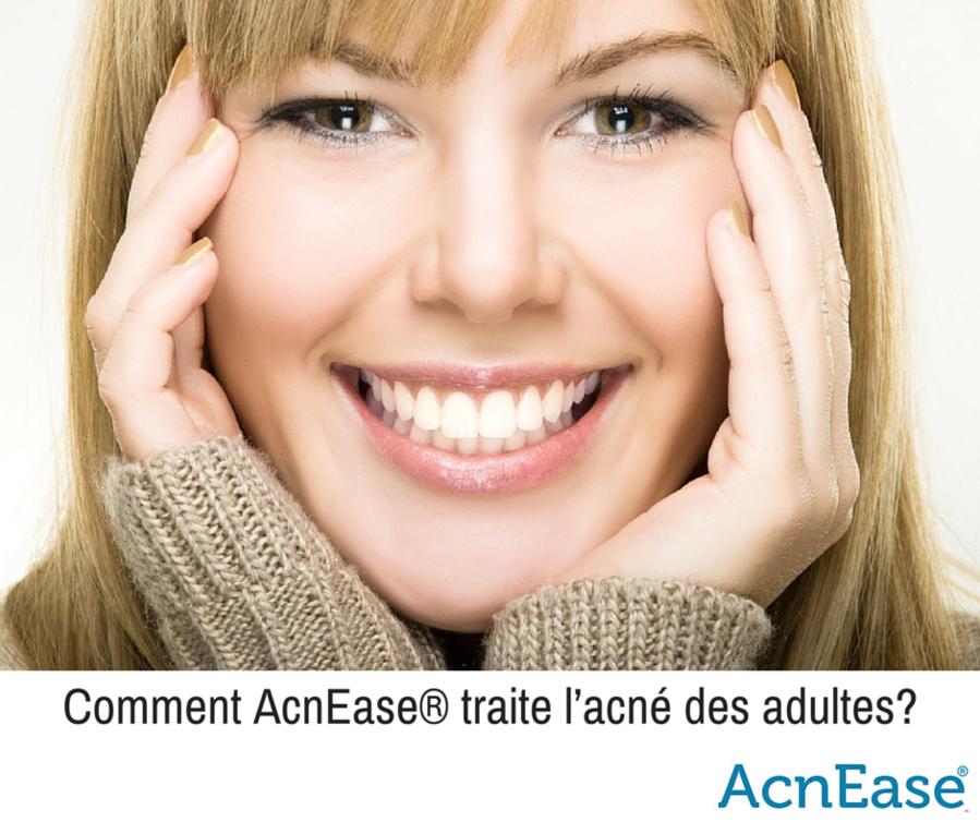 Comment AcnEase traite l'acné des adultes? | AcnEase