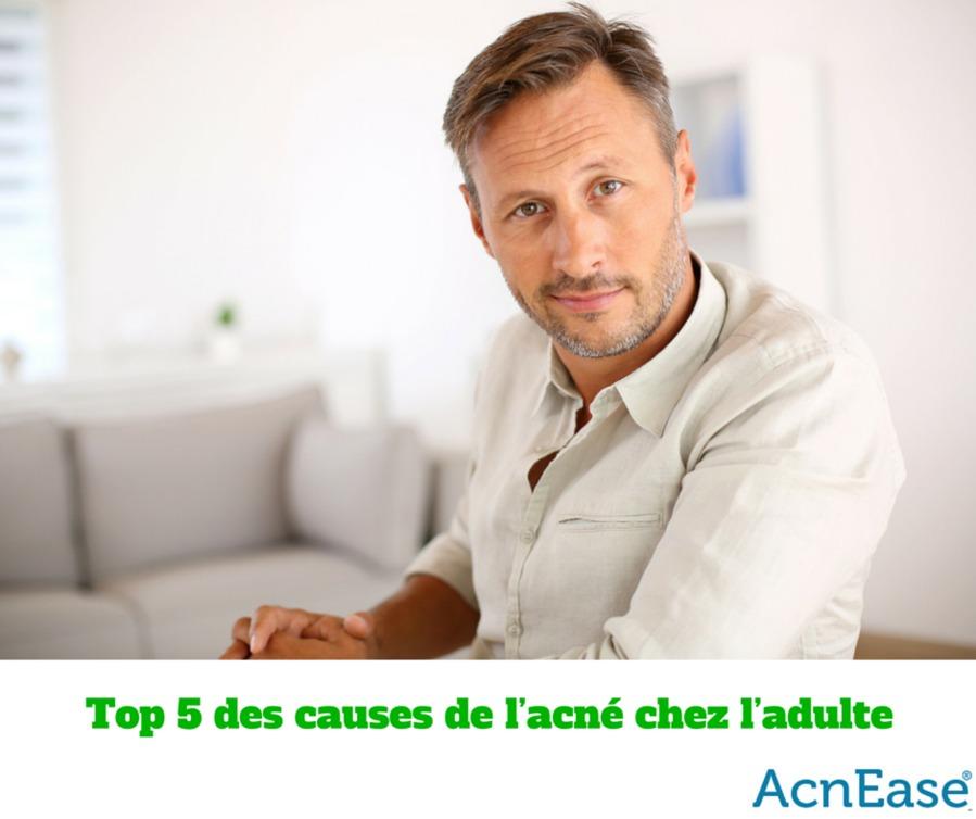 top 5 des causes de l acn chez l adulte et comment les. Black Bedroom Furniture Sets. Home Design Ideas